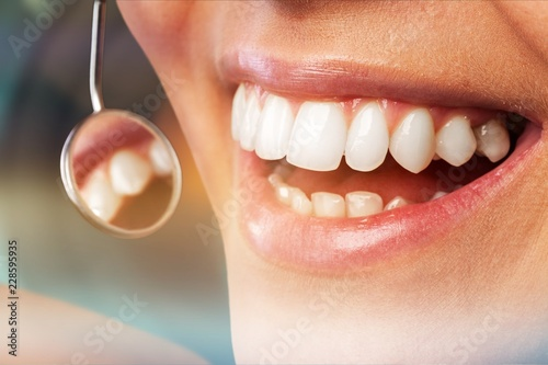 Stampa su Tela  Odontology periodontal attractive teenager beautiful girl