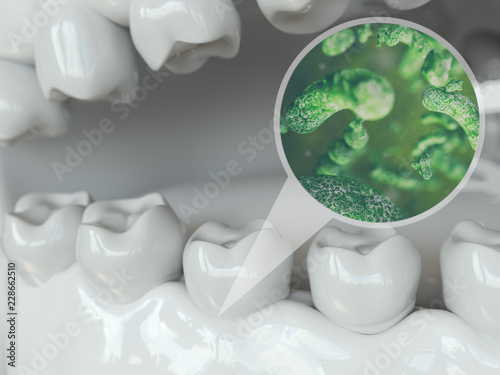Bacteria and viruses around tooth 2 of 2 - 3D Rendering Canvas-taulu
