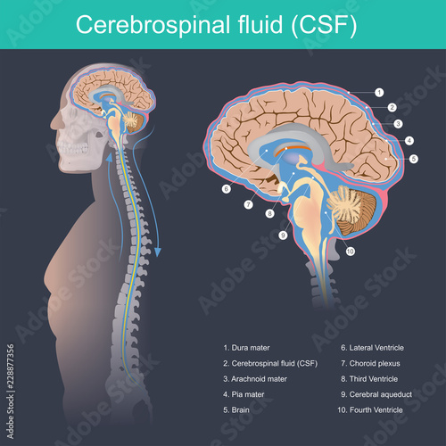 Photo Cerebrospinal fluid