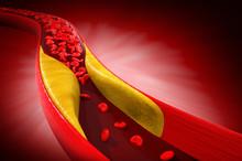 Blood Cells With Plaque Buildup Of Cholesterol 3d Illustration.