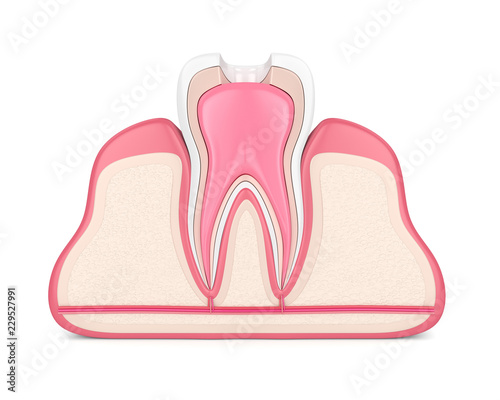 3d render of tooth with root canal treatment procedure Canvas Print
