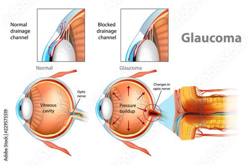 Fényképezés  Glaucoma