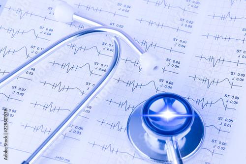 EKG beim Hausarzt mit Lichtreflex Canvas Print