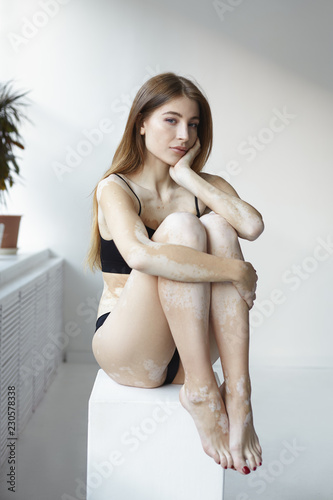 Vertical Shot Of Gorgeous Confident Young European Female Sitting In White Room With Knees To Chest Looking At Camera With Serious Facial Expression Vitiligo Skin Condition And Auto Immune Disease Buy