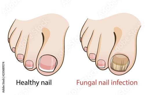 Fototapeta Nail fungal infection