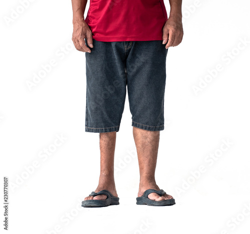 Photo Picture shows a man with legs atrophy or legs are not equal but can stand and walk on his own