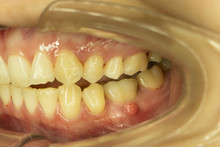 Gum Swelling From Dental Root Abscess