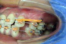 Miniscrew And Elastic Chain In Orthodontic Treatment