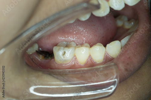 Fotografie, Obraz  decayed tooth in lower molar tooth