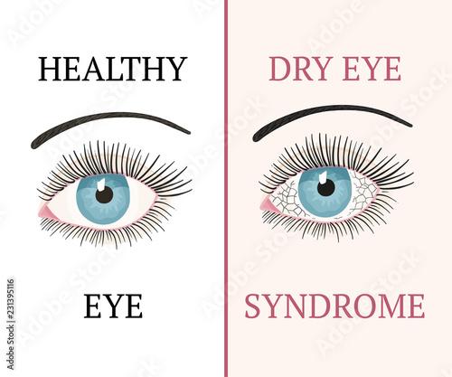 Fotografie, Obraz  Eye disease. Ophthalmology health illustration.