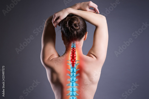 Cuadros en Lienzo Pain in the spine, woman with backache on gray background, back injury