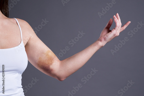 Fotografie, Obraz  Bruises on the woman's hands, arms with extensive hematoma