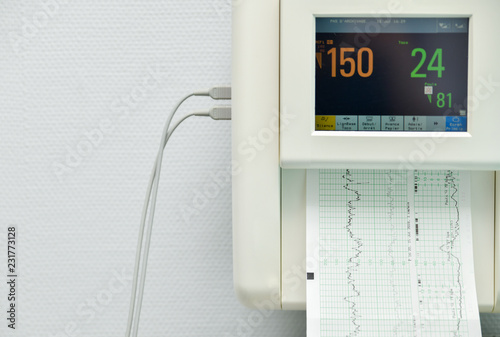Fotografia, Obraz  Monitor for measuring contractions, heartbeat of a pregnant woman