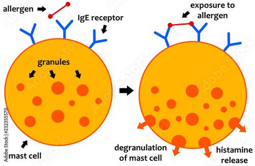 фотографія  allergic reaction mechanism