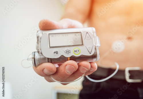 Photo Diabetic man with an insulin pump connected in his abdomen and holding the insulin pump at his hands