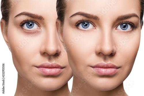 Female eyes with bruises under eyes before and after cosmetic treatment Wallpaper Mural
