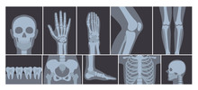 Vector Illustration Of Realistic Set Of Many X-rays Pictures Of Human Body. Transparent X-ray Photos On White Background.