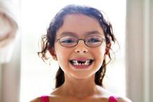 Portrait Of Girl With Broken Teeth