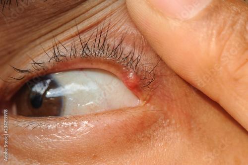 Eye disease hordeolum. Canvas Print