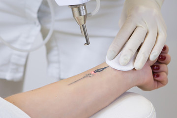 Close-up of laser tattoo removal from woman hand.