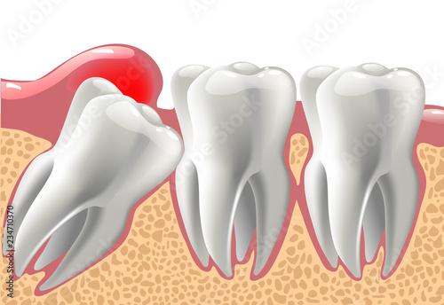 Fotografía  realistic 3D teeth, and wisdom tooth problems