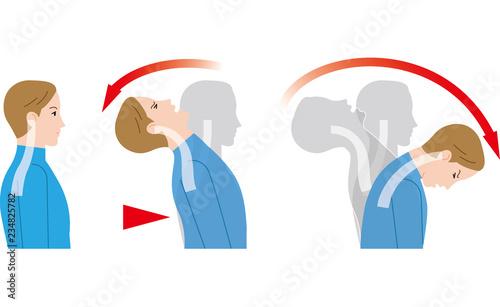 Fotografia 後ろからの衝撃による首の動き。むち打ち症。