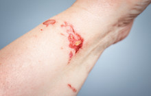 Chemical Burn On The Skin From...