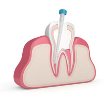 3d Render Of Tooth With Gutta ...