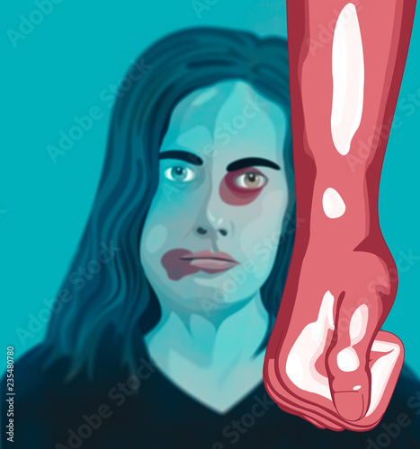 Fotografie, Obraz Violenza domestica, donna depressione, maltrattamento, picchiare, ragazza, bambi