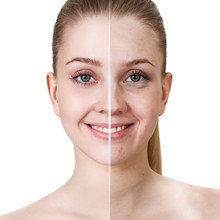Young Woman Before And After Treatment And Make-up.