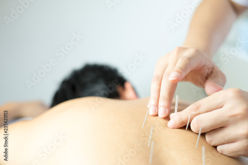 acupuncture treat concept Canvas Print