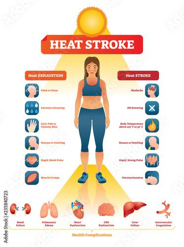 Fotografía Heat stroke vector illustration