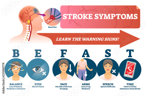 Fotografija Stroke symptoms vector illustration