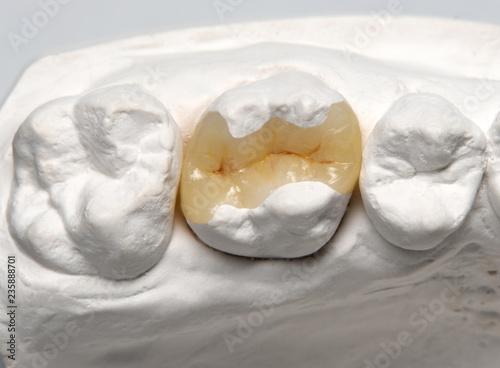 Keramikinlay auf weissem Modell Fototapeta