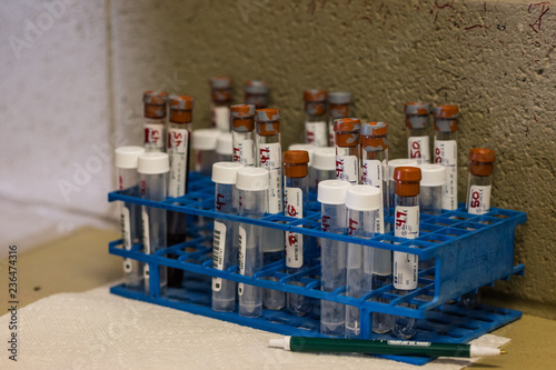 Fototapety, obrazy: Vials of blood of horses who race on Kentucky Derby day