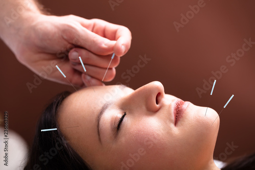 Woman Receiving Acupuncture Treatment On Her Face Canvas Print