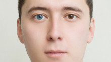 Young Man With Heterochromia - Two Different Colored Eyes. Contact Lenses.face Close-up