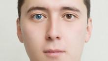 Young Man With Heterochromia -...