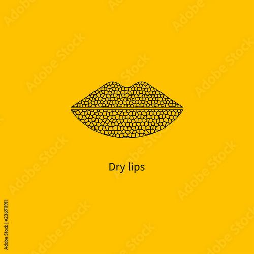 Womens dry chapped lips Wallpaper Mural