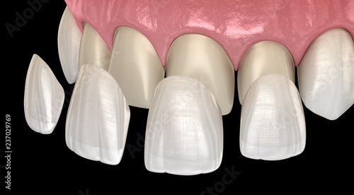 Fotografie, Obraz  Veneer installation procedure over central incisor and lateral incisor