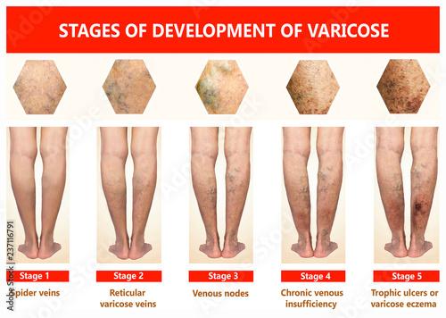 Cum să scapi de varicele reticulare