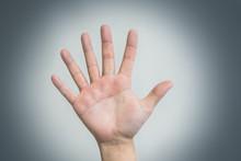 Hand With Six Fingers, Human Mutation, Not Like Everyone Else, Strange Man, Evolution. Concept