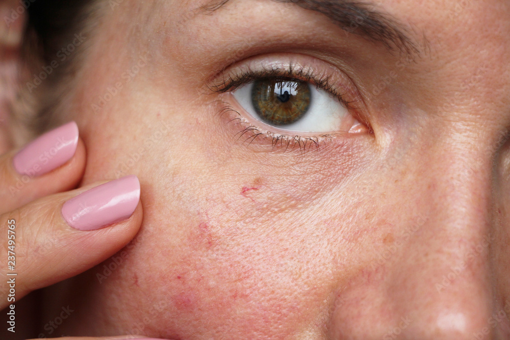 Fototapety, obrazy: capillaries on the skin of the face,