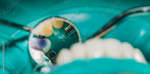 Fotografie, Obraz  Ceramic front crowns, green background. 8 units dental veneers