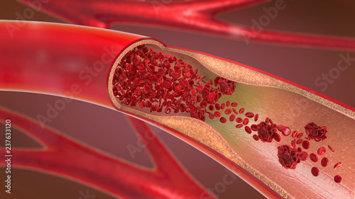 3d illustration of a constricted and narrowed artery and the blood cannot flow p Wallpaper Mural