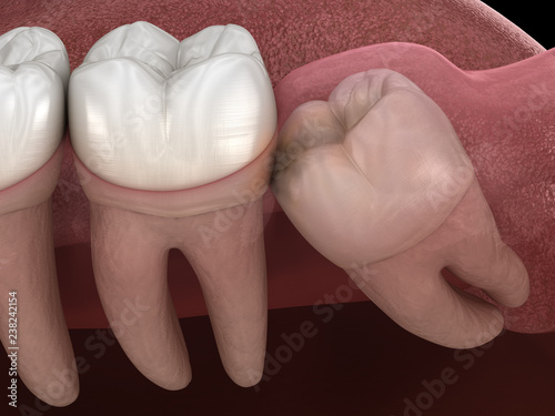 Carta da parati Healthy teeth and wisdom tooth with mesial impaction