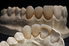 Ceramic Crowns, Removed From The Reflection In The Mirror With Black Background
