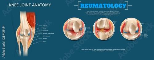 Realistic Banner Illustration Knee Joint Anatomy Wallpaper Mural