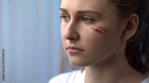 Fotografie, Obraz  Face of young depressed woman with scars on cheek, trauma after car accident