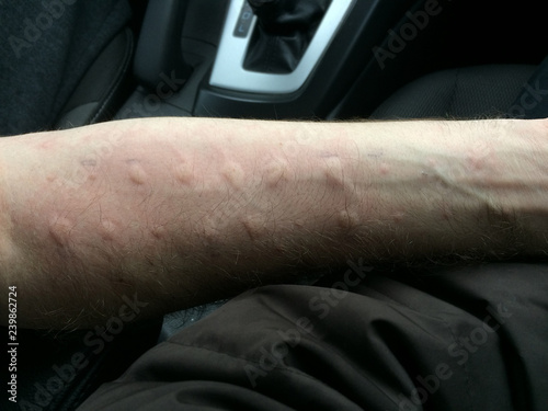 Fotografering  Hives on an arm, the result of an allergy  needle prick test.